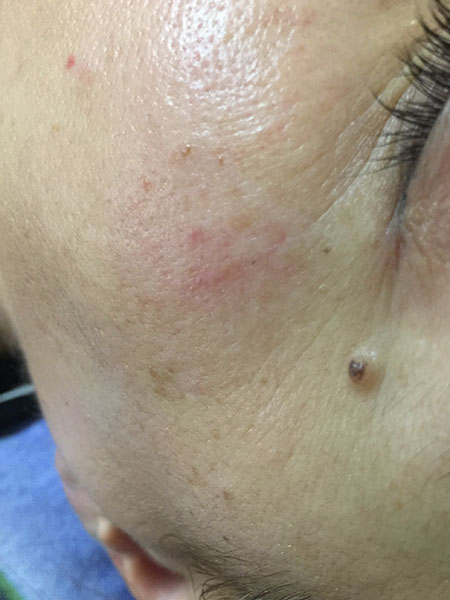 Eye Treatmet Spas | RN Laser & Med Spa Fort Pierce Florida