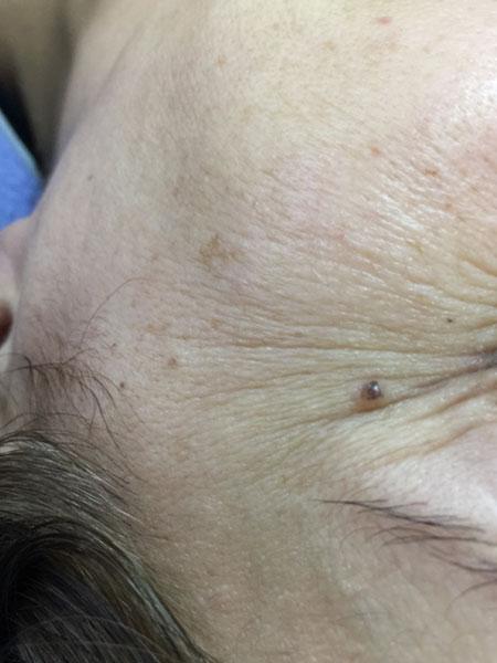 Eye Treatment | RN Laser & Med Spa Fort Pierce Florida 34950