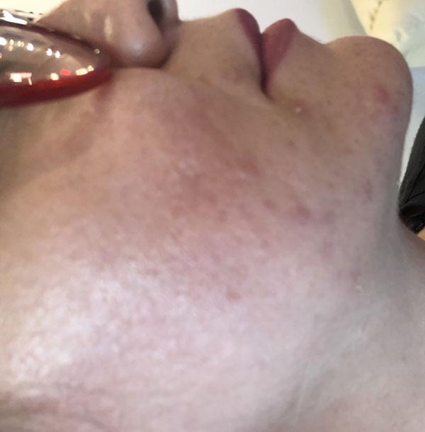Acne Treatment Spa   RN Laser & Med Spa