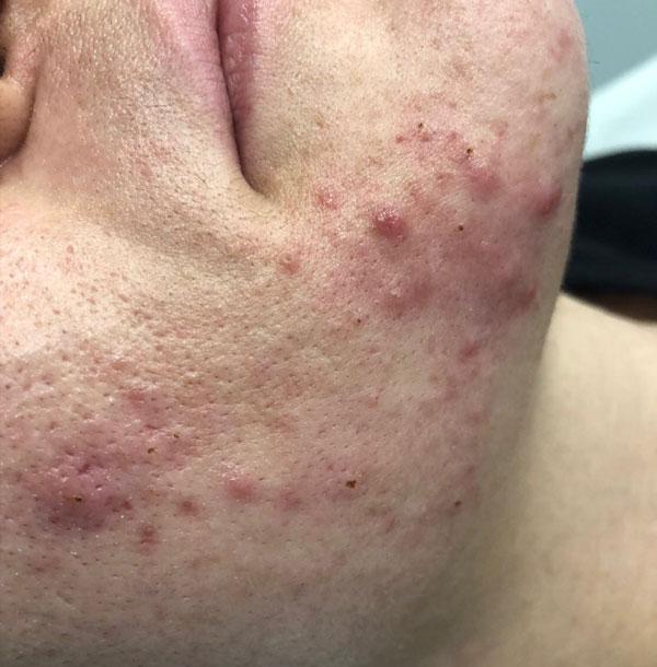 Acne Treatment   RN Laser & Med Spa