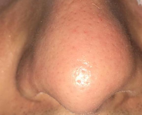 Hydrodermabrasion Treatment   RN Laser & Med Spa of Fort Pierce, Florida