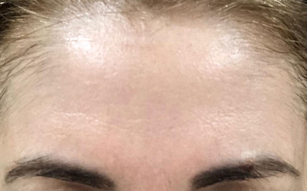 Fibroblast Plasma Facial   RN Laser and Med Spa