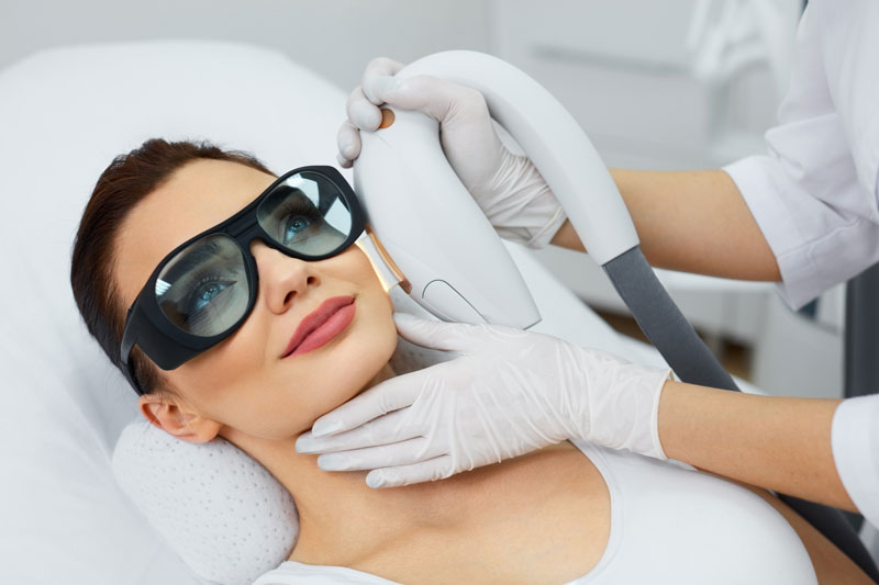 IPL Photo Rejuvenation Treatment Spa   RN Laser & Med Spa