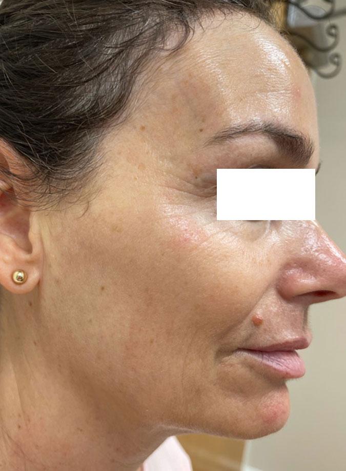 Hydrafacials | RN Laser & Med Spa in Fort Pierce Florida
